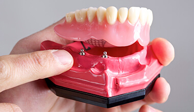 Lower plate of implant-supported dentures