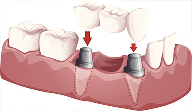 Worthington dental implant supported crown and bridge