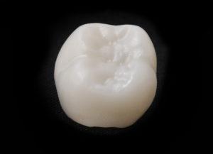 A ceramic dental crown