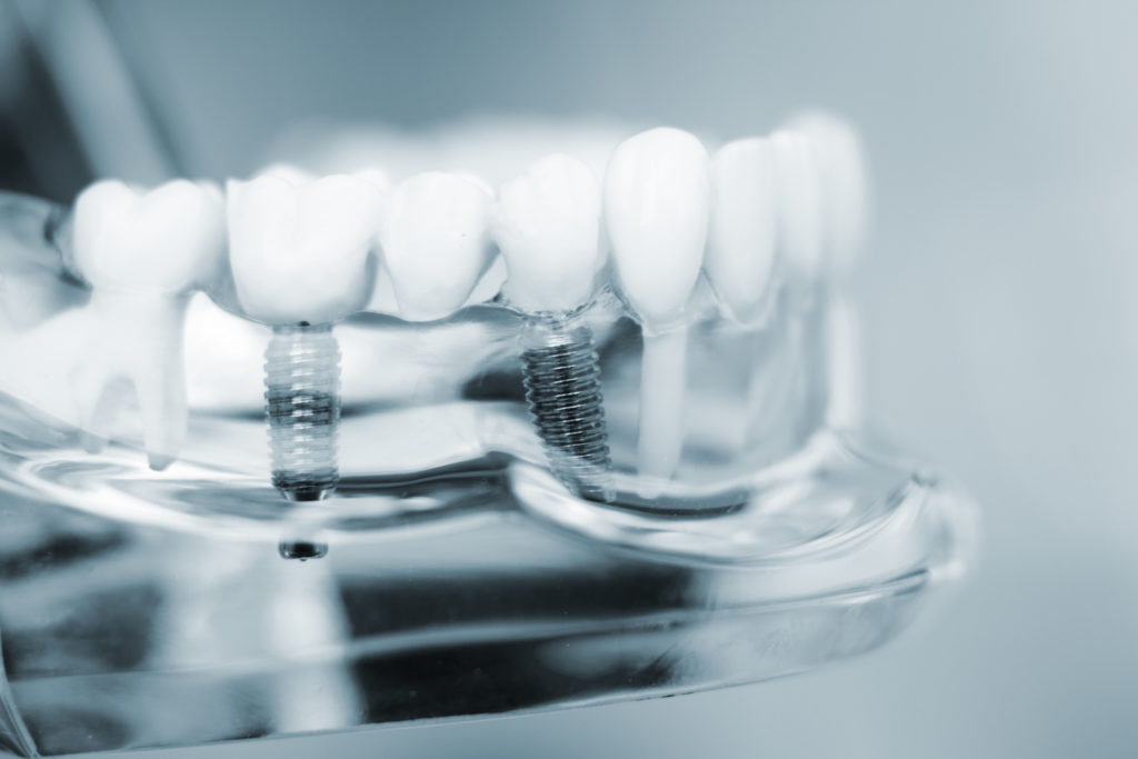 Model of modern dental implants